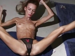 Anorexic girl showing her flexibility